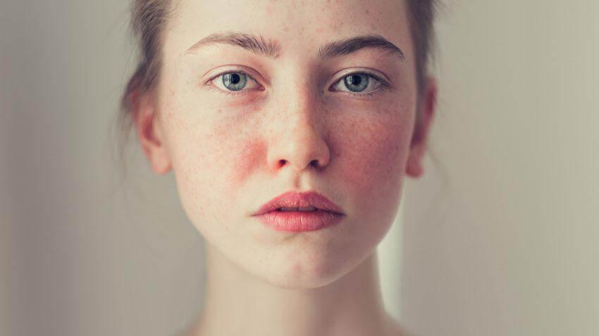 Những Cách Chăm Sóc Da Mặt Khi Bị Dị Ứng 1