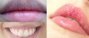 Vì sao phun môi về bị thâm đen?